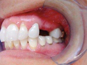 mini dental implants Sylacauga, AL